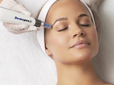 Skin-Divinity-DermaPen-4