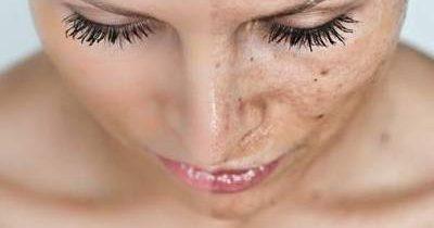 manchas-faciales